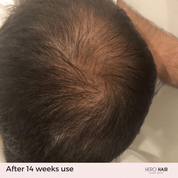 Hair_14_weeks